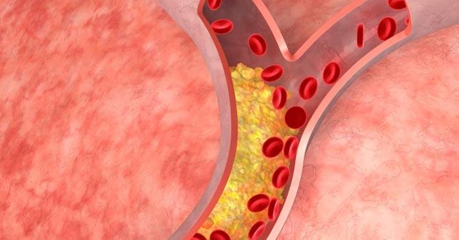 Csökkents a koleszterinszinted Myco Crystal Shiitake gyógygombával!
